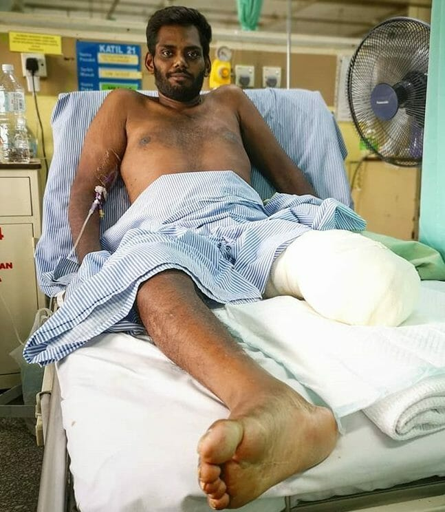 Me on my hospital bed with my amputated leg.